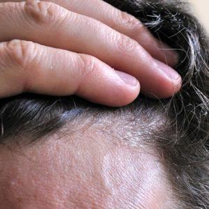 hombre con caspa en el pelo