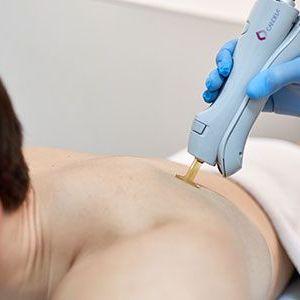 hombre depilándose la espalda con laser