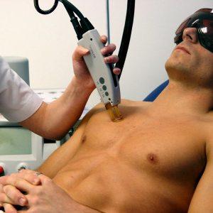 hombre haciendo depilación laser