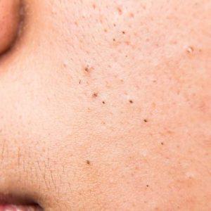 puntos negros en la cara