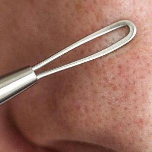 puntos negros en la nariz
